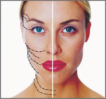 Νήματα – Υαλουρονικό – Botox
